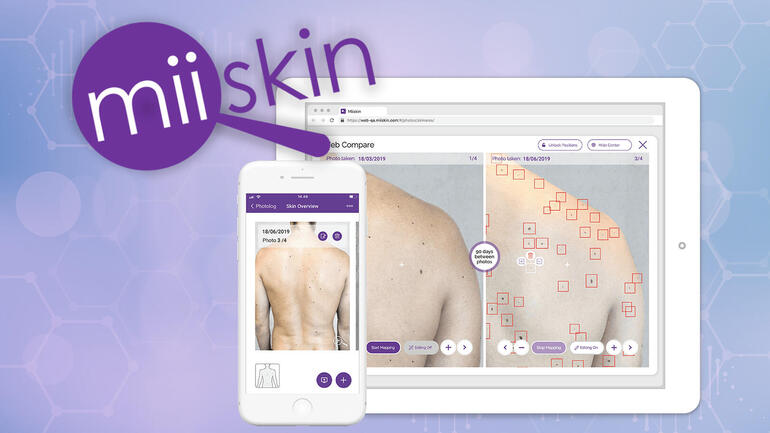 App can prevent skin cancer